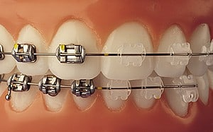 Braces and Invisalign in OC has metal or clear braces options