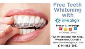 Teeth Whitening Coupon
