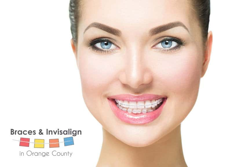 Smiling Woman With Ceramic Braces