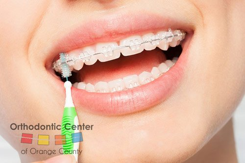 Tips For Taking Care Of Your New Braces