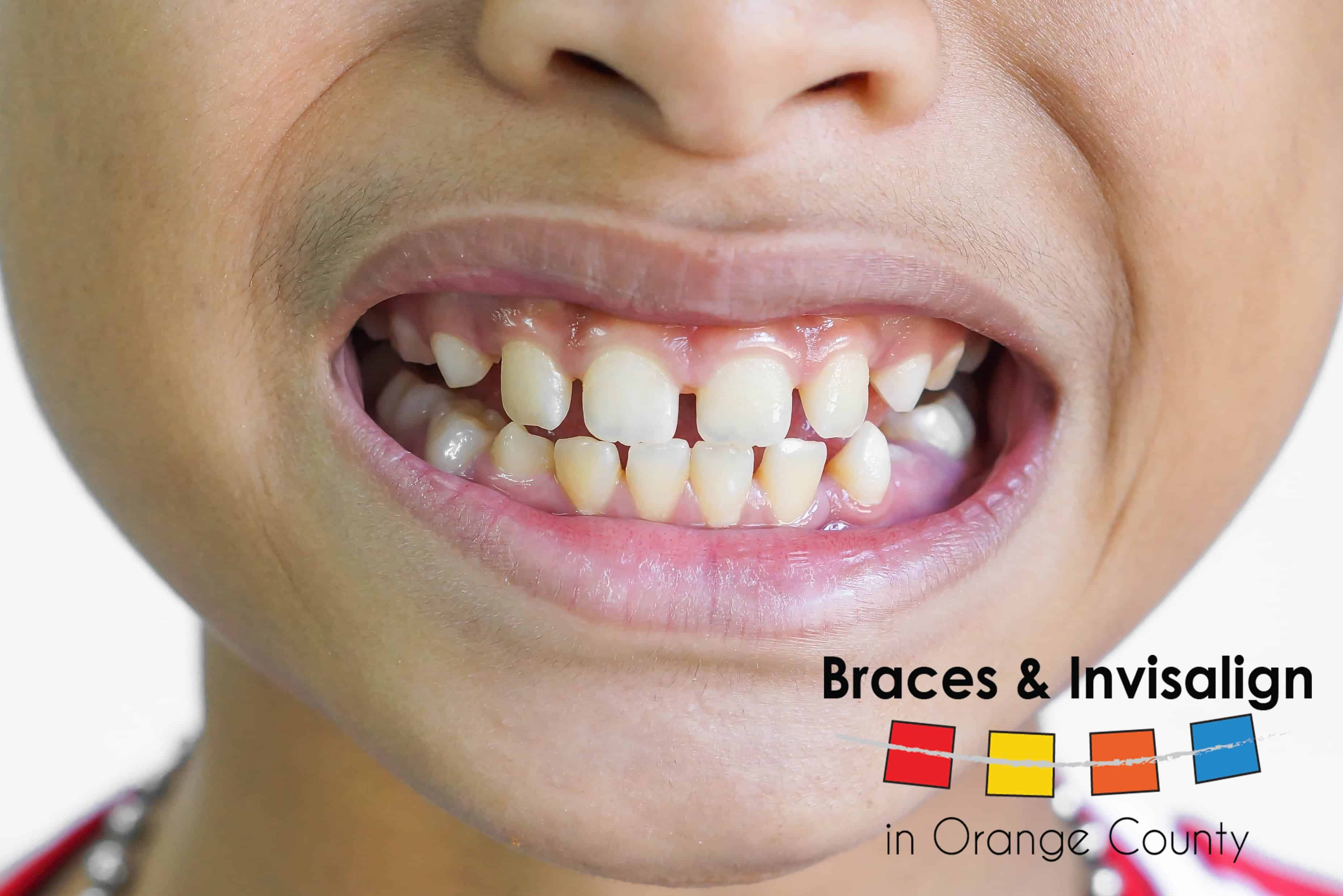 Causes of Crooked Teeth in Children