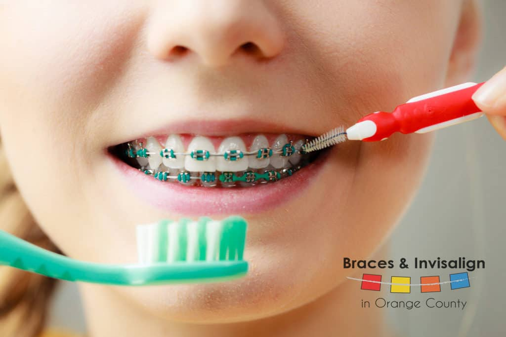 Tips and Tricks for Keeping your Braces in Optimal Condition